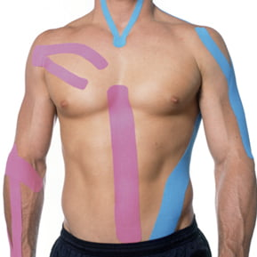 Kinesio Taping at Peak Physique